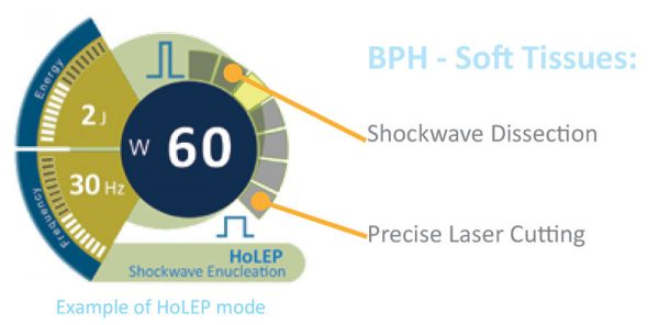 BPH-Soft-Tissues