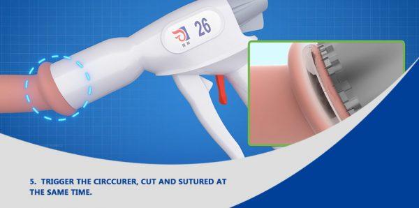 Dispozitiv pentru circumcizie